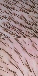 Hair Clusters